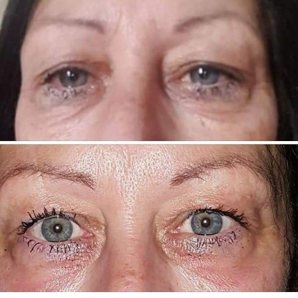 before and after of the eye area: Swipe To View More Images