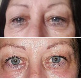 before and after of the eye area: Click Here To View Larger Image